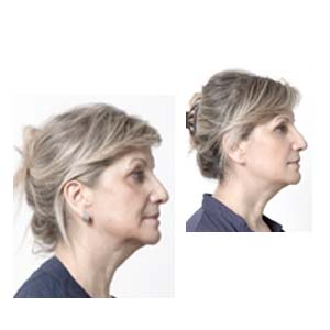 Lateral nappage of the face with hyaluronic acid