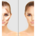 CONTOURING USING HYALURONIC FILLERS