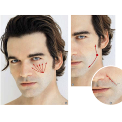 Correcting aging face in men with Apriline® HA fillers.