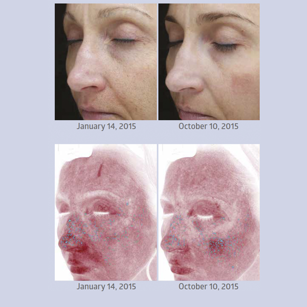 AQ Skin Solutions: A safer alternative to PRP