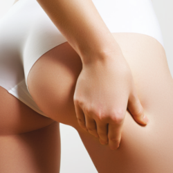 A new medical treatment for cellulite