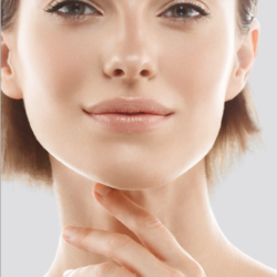 Face lifts: improving the cervicomental angle