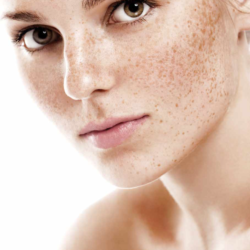 How do we deal with skin hyperpigmentation?
