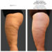 Effectiveness of diathermocontraction in skin laxity and drainage of interstitial fluids in post liposuction